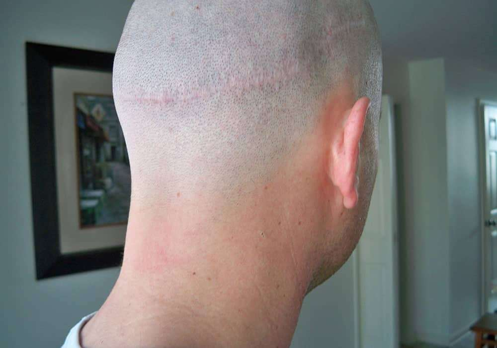 Concealing Hair Transplant Scars With Fraxel Laser Team Micro