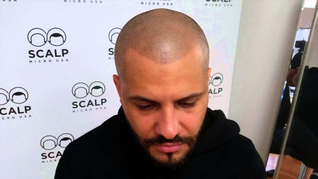 disadvantages of scalp micropigmentation