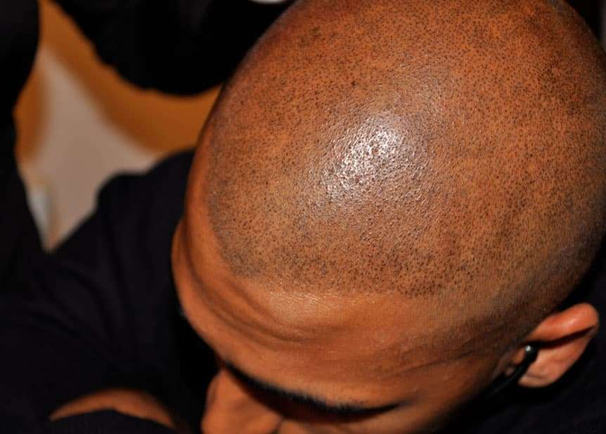 asian men scalp micropigmentation