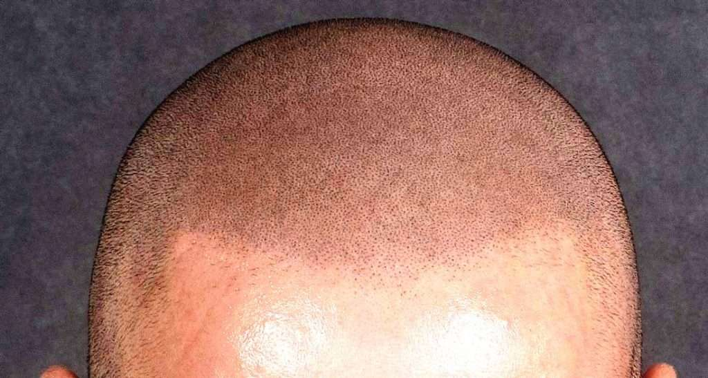scalp micropigmentation dot size