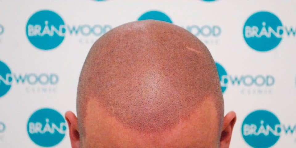 Another excellent hairline by Brandwood Clinic in Birmingham