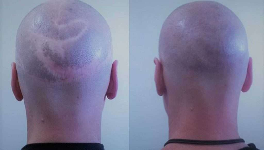 scalp reduction scar before and after scalp micropigmentation