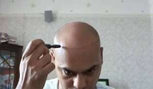 simulate scalp micropigmentation using dermmatch