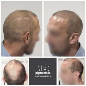 Tricopigmentation with long hair