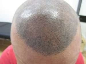 scalp micropigmentation turning blue