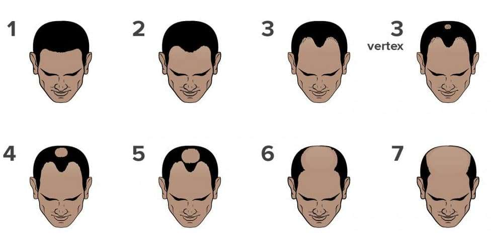 an infographic of the norwood hamilton scale for hair loss