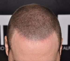 scalp micropigmentation for longer hair