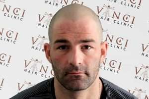 how undetectable is scalp micropigmentation