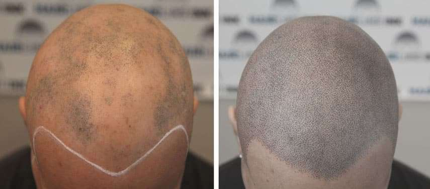 scalp micropigmentation for a client with alopecia areata