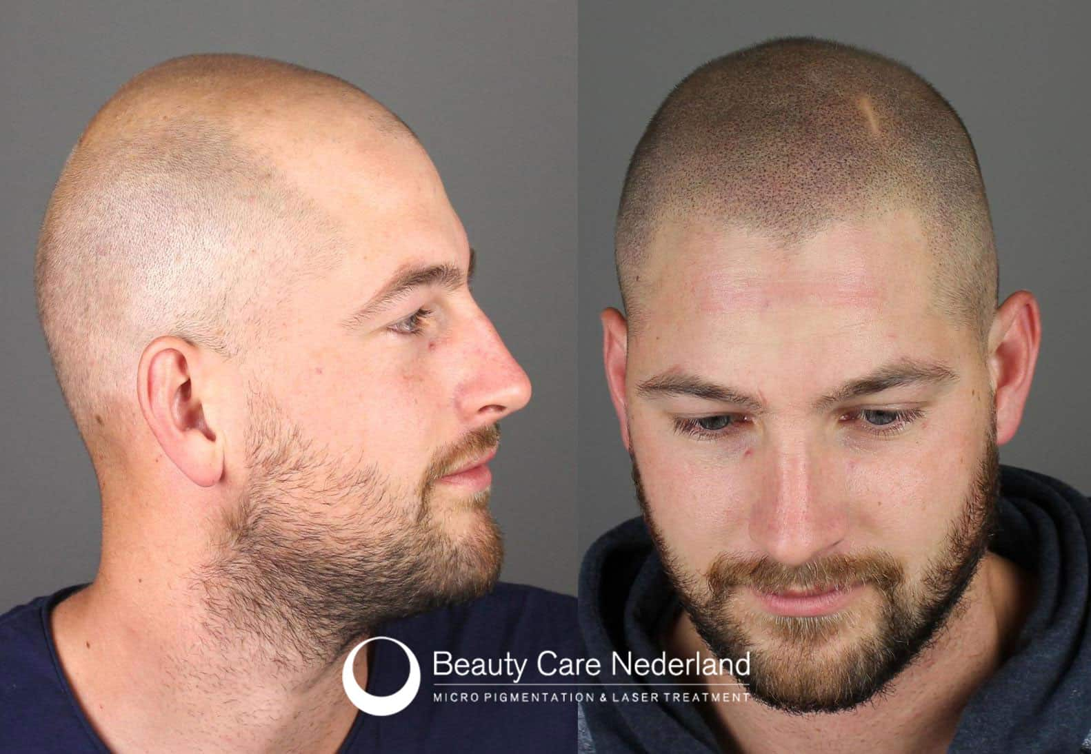 Beauty Care Nederland client before and after scalp micropigmentation