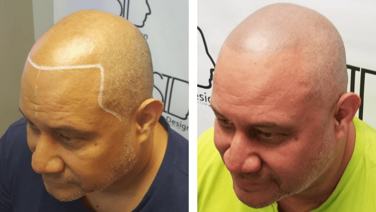 Scalp Ink Design client before and after scalp micropigmentation