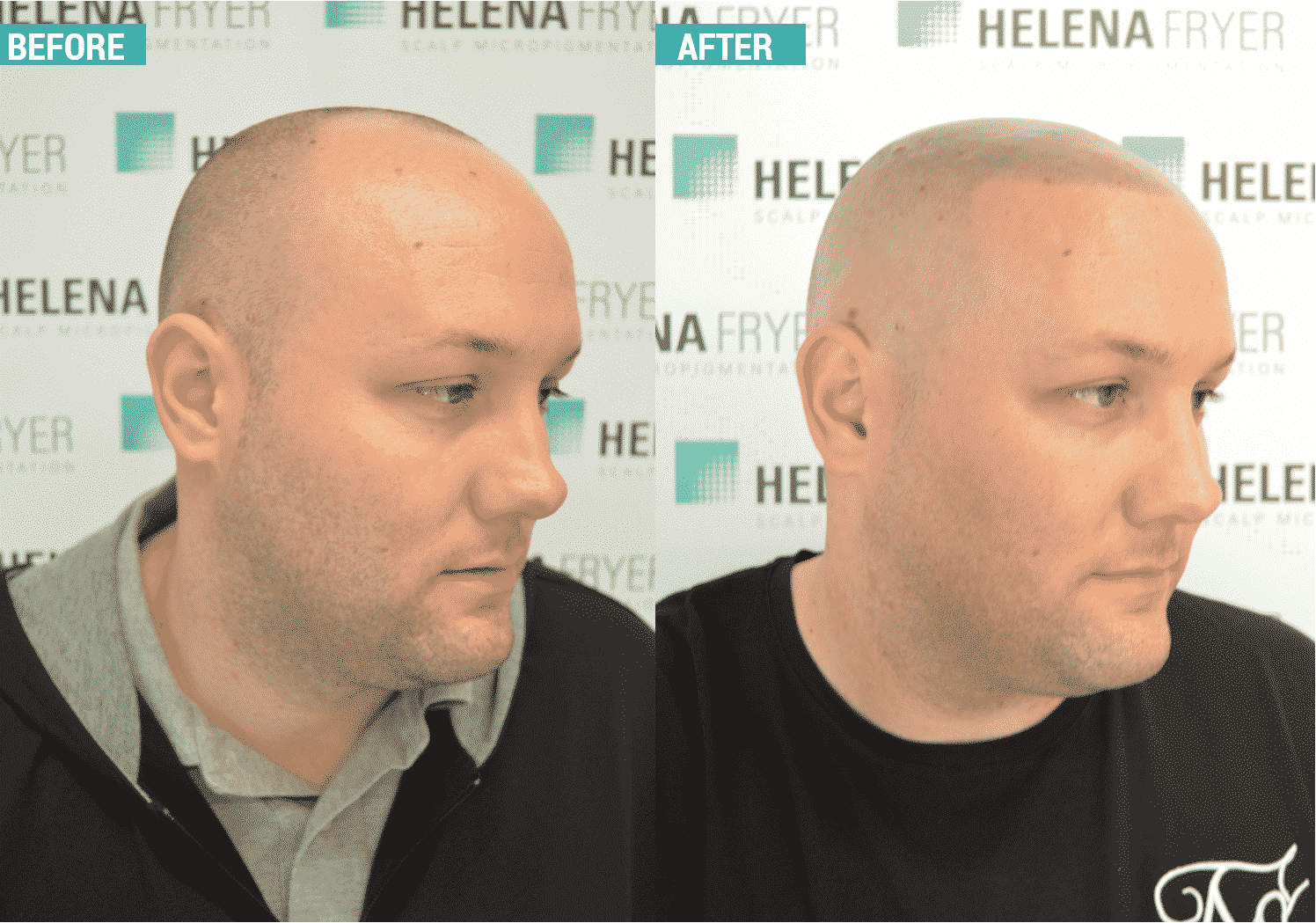 Client treated by UK practitioner Helena Fryer