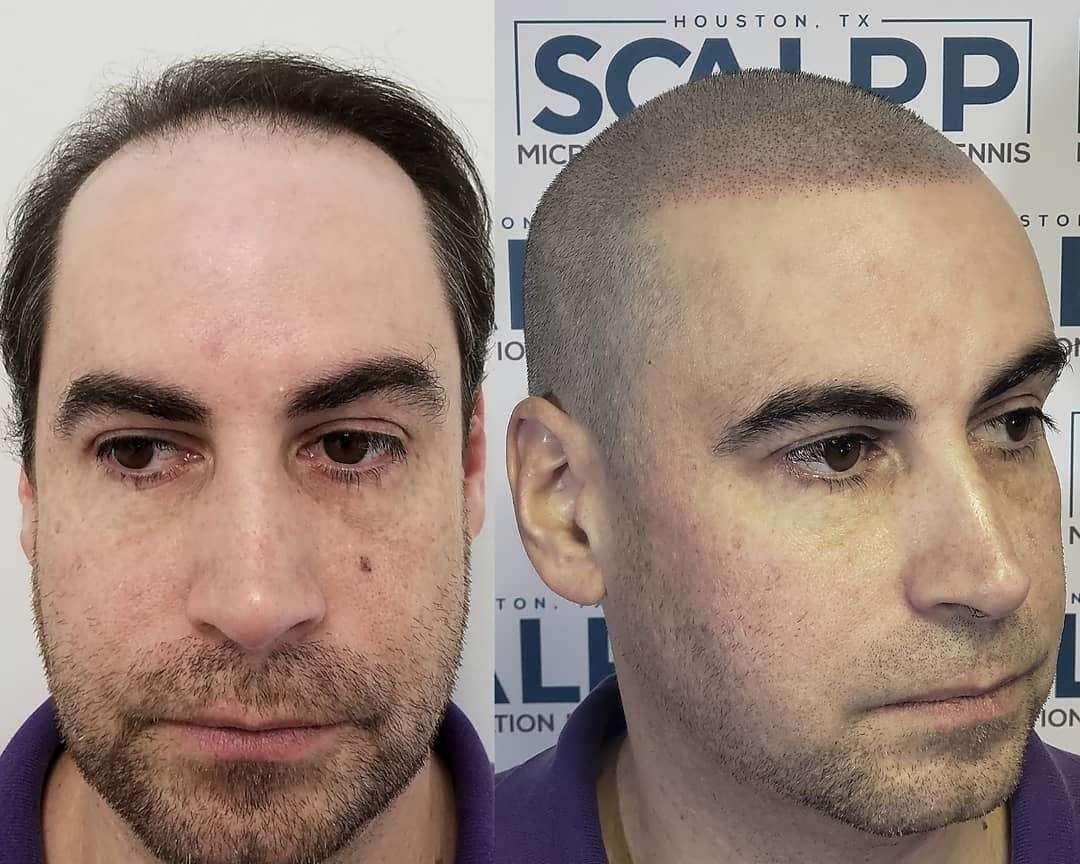 Great treatment by Ian Dennis of Scalpp in Houston