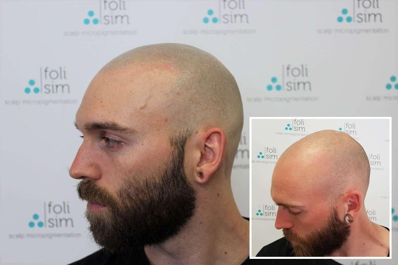 Before and after treatment by Foli Sim in Perth, Australia
